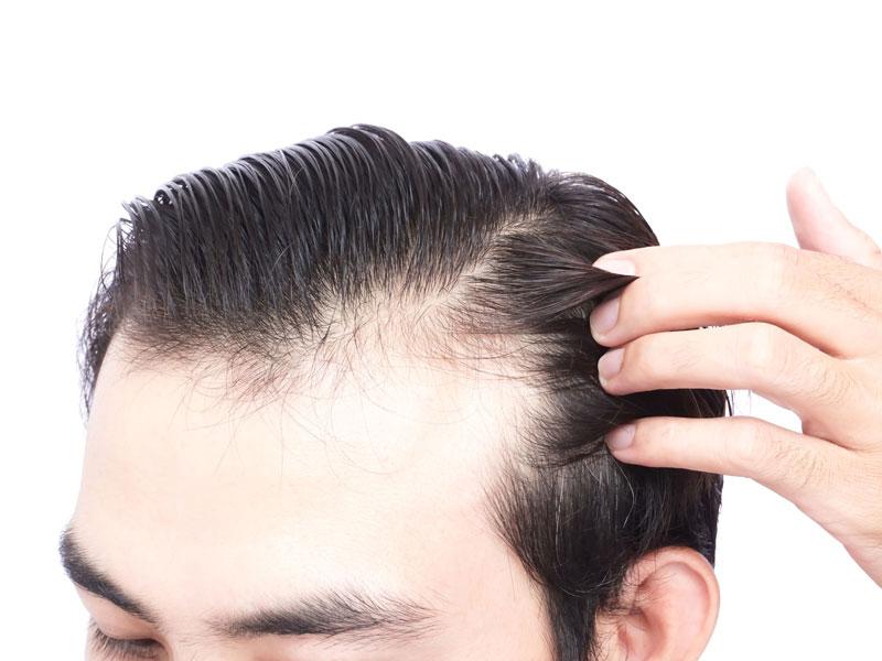 Deutschland kosten haartransplantation geheimratsecken Haartransplantation: Nie