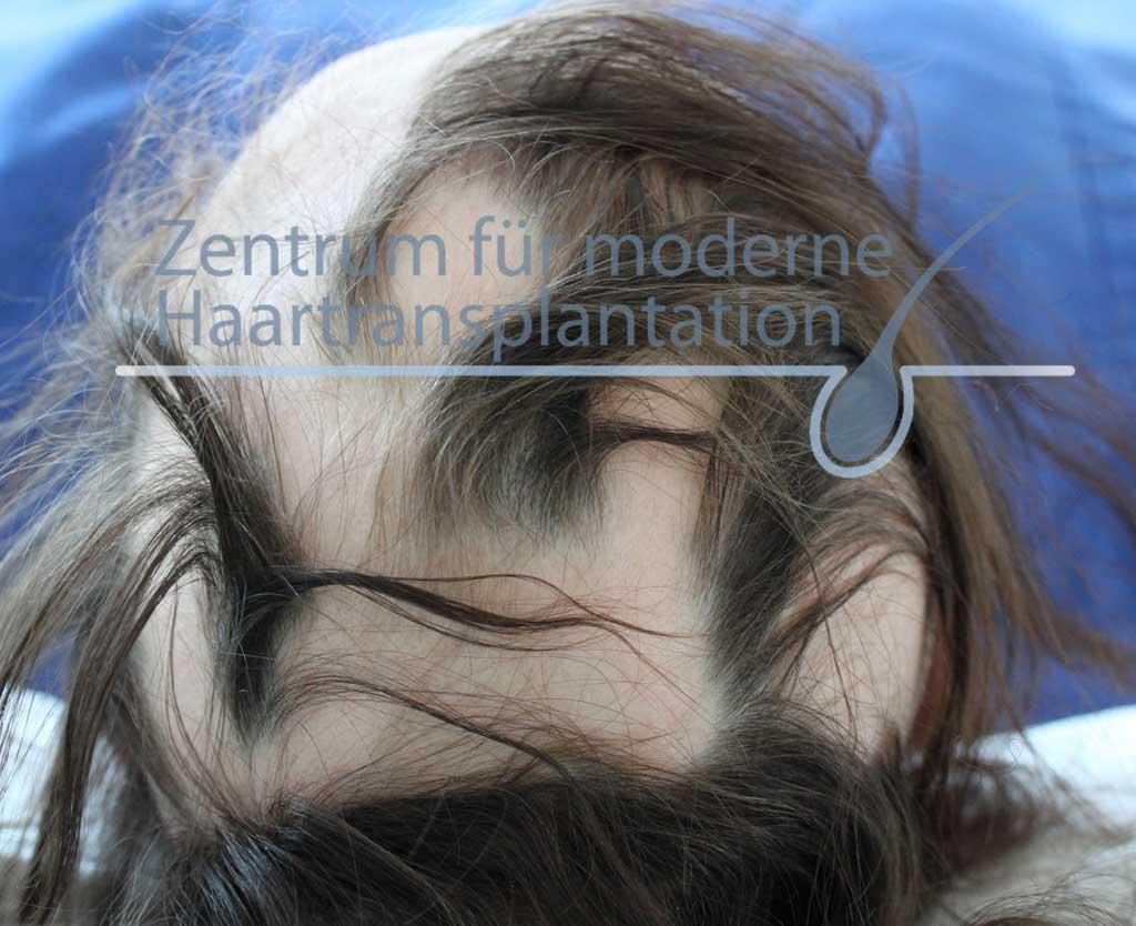 Frau frisur bei haarausfall Haarausfall