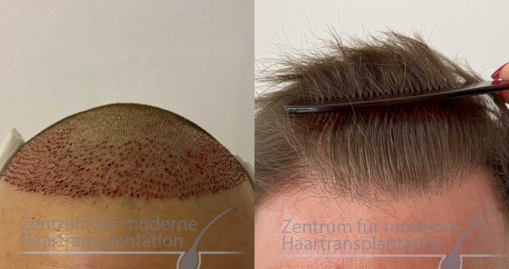 Deutschland kosten haartransplantation geheimratsecken Haartransplantation Klinik