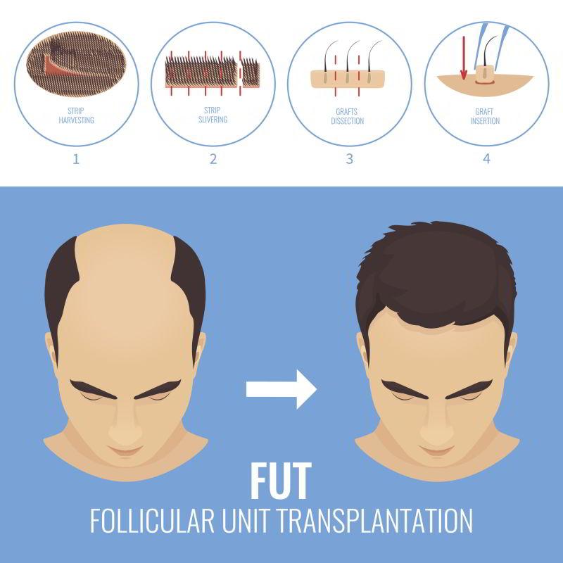 Haartransplantation kosten für Haartransplantation in